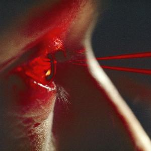 laser_eye.jpg